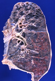 Emphysema | by Pulmonary Pathology