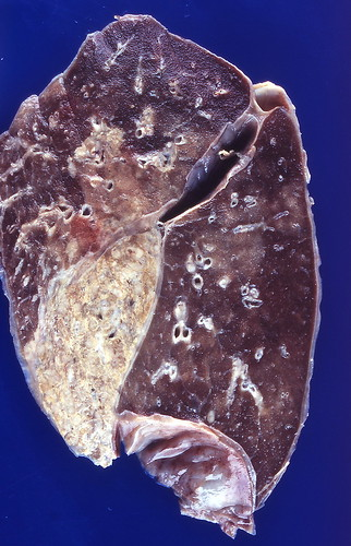 Cryptococcosis | by Pulmonary Pathology