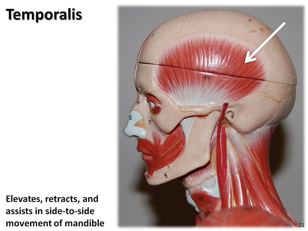 Temporalis - Muscles of the Upper Extremity Visual Atlas ...