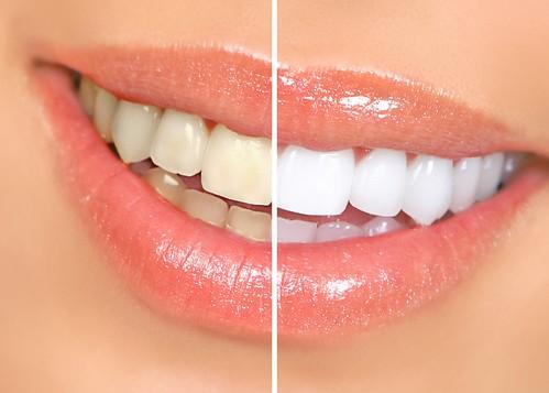 Fogfehírítő kezelés során a fogat kémiai eljárással tesszük fehérebbé.