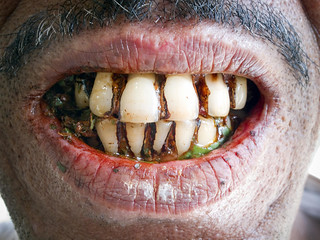 Man with Periodontitis in Dhaka Housing Slum | by United Nations Photo