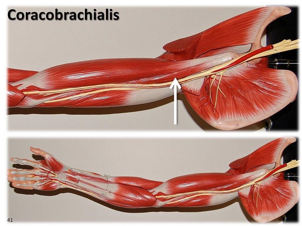 Coracobrachialis  Large Arm Model