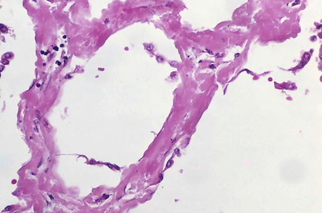 Amyloidosis, diffuse