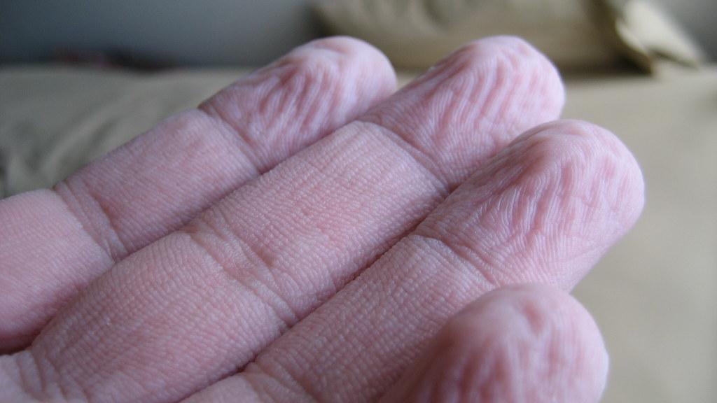 Dishwashing Hands (July 17, 2010) [121/365]