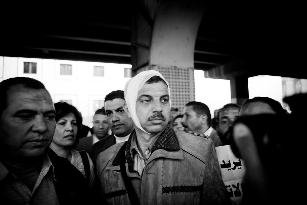 Hussein, Trade unionist injured by ETFU thugs إصابة نقابي من الضرائب العقارية في هجوم باطجية مجاور