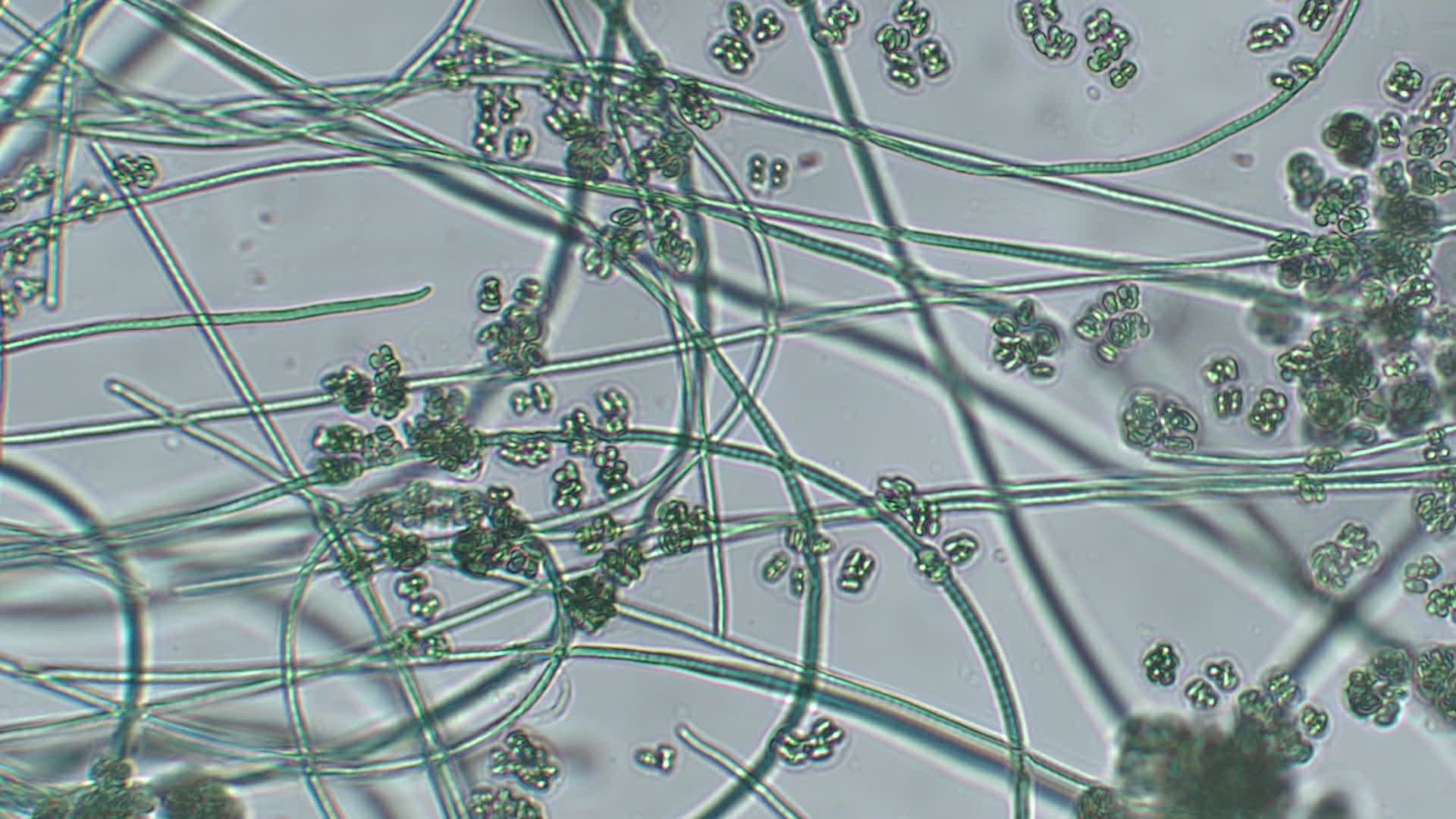 Video: The Cyanobacteria: Oscillatoria and Gleocapsa