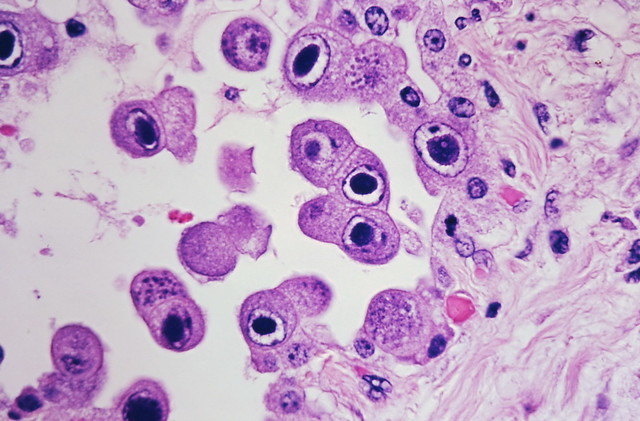 Cytomegalovirus infection - Case 301