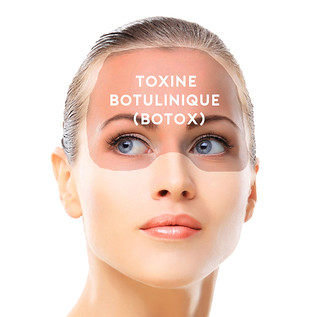 inject botox 11 | by dr.spitalier