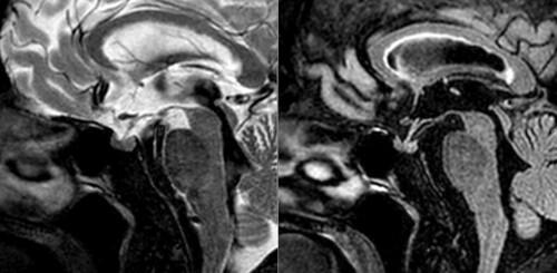 Hipófisis normal   by la neuroimagen