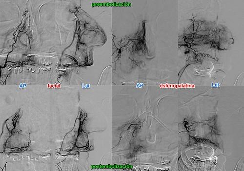 embolización epistaxis | by la neuroimagen