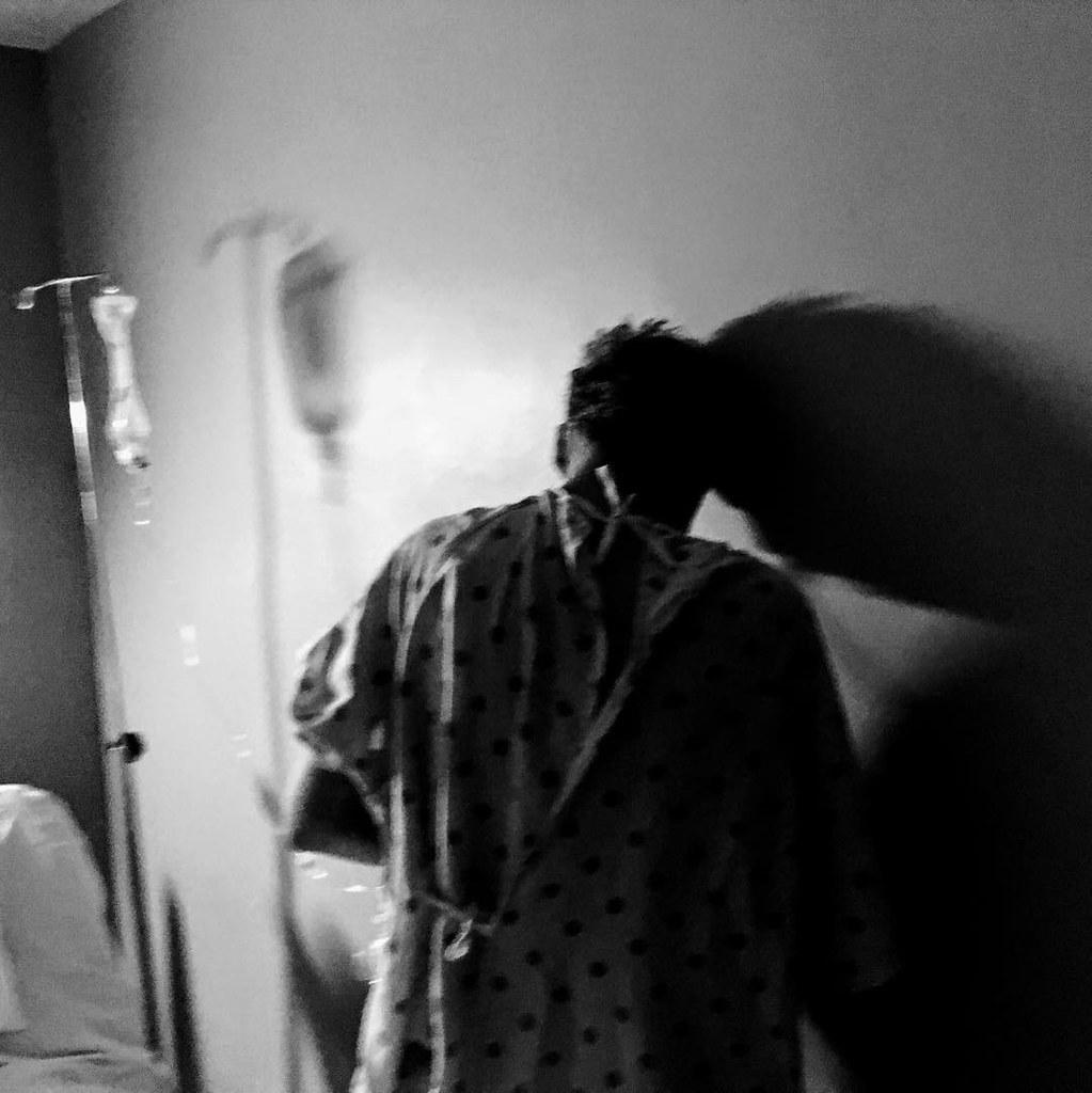 leczenie raka jelita grubego