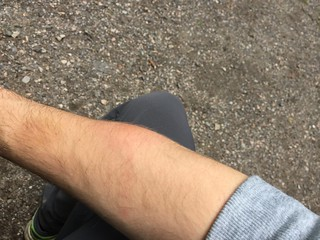 Mosquito bite | by Brown Bear Travels