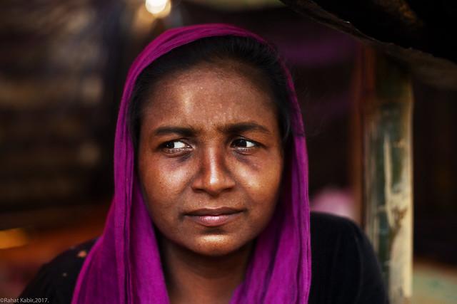 #Rohingya_Refugee Ukhiya, Cox's bazar, Bangladesh, 2017. #refugeelife #refugeecamp #kutupalong #Survivor #rohingya #crisis #bangladesh #2017