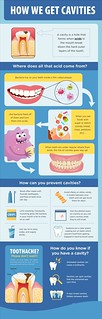 Answers to questions about cavities | by teodoromarchand