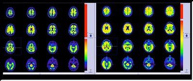 MRI - Brain Scan