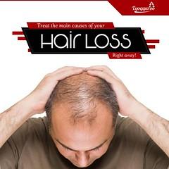 Best Hair Care Tips for Men