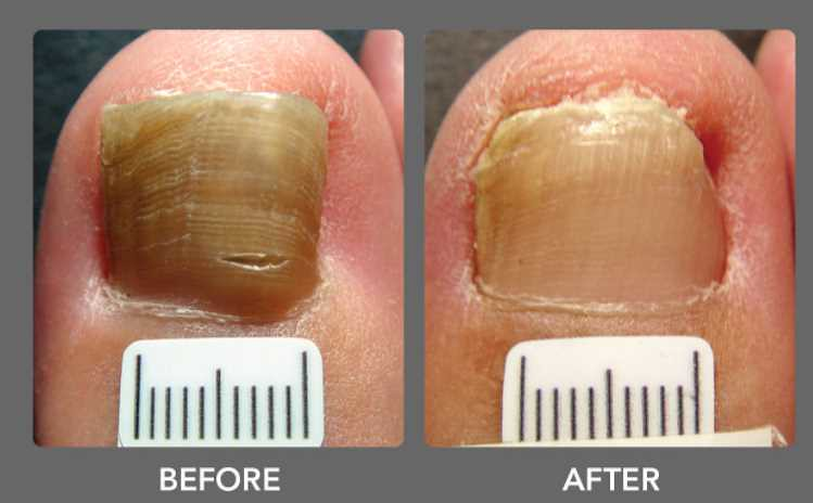 Vicks for Toenail Fungus and also the Right Medical Expert… | Flickr