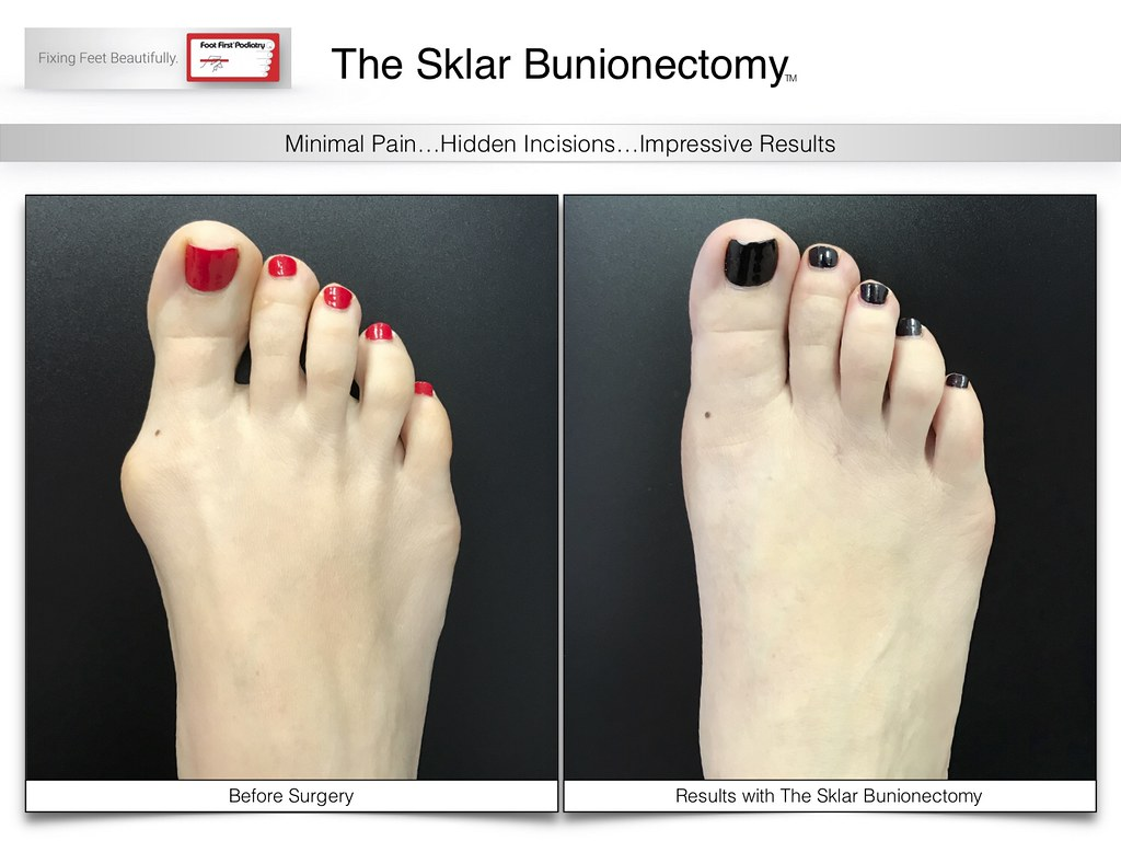 98cf0ff5cf Check out www Get a super cute #bunion free foot with the  #SklarBunionectomy! Check out www