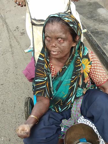 streetphotography bandra marialeperlady beggar bandrabazar leprosy