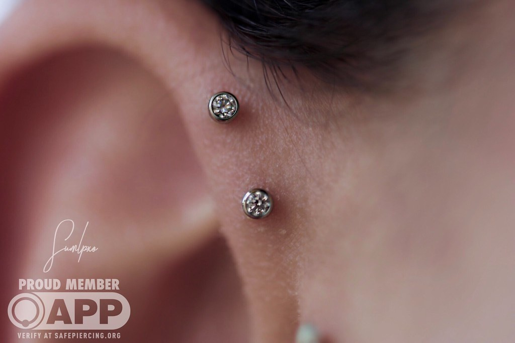 Healing Double Forward Helix Piercings With Jewelry By Neo Flickr