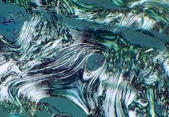 Osteoblastic sea