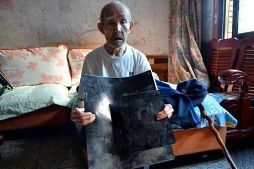 Duan Zhicai muestra sus radiografias