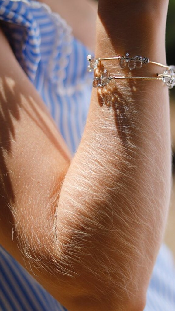 Girls with hairy arms