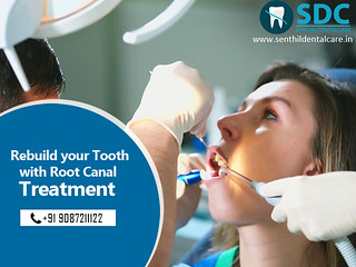 Laser Assisted Root Canal Treatment and its Benefits