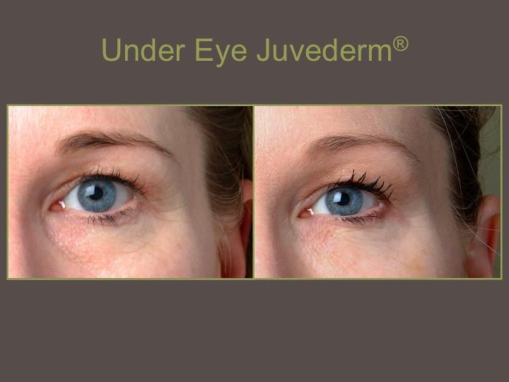 Juvederm under eyes | Brian Biesman, M D  | Flickr