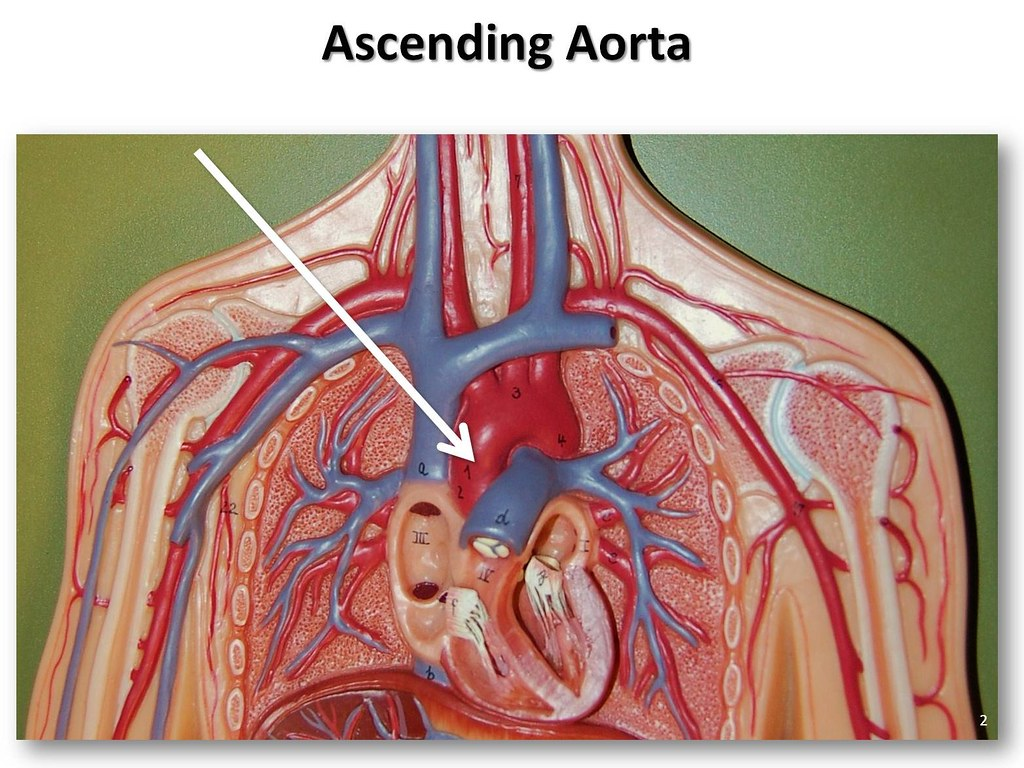 Ascending aorta - The Anatomy of the Arteries Visual Guide