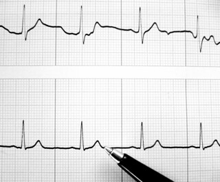 heartbeat | by Rosmarie Voegtli