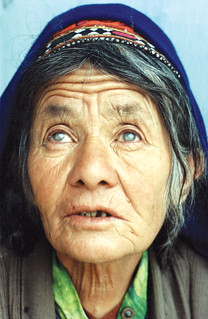 Bilateral cataract in an Afghan woman (pupils dilated). AFGHANISTAN. | by Community Eye Health