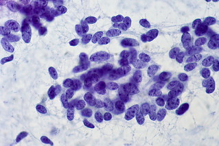 Carcinoid Tumor of Lung, FNA | by euthman
