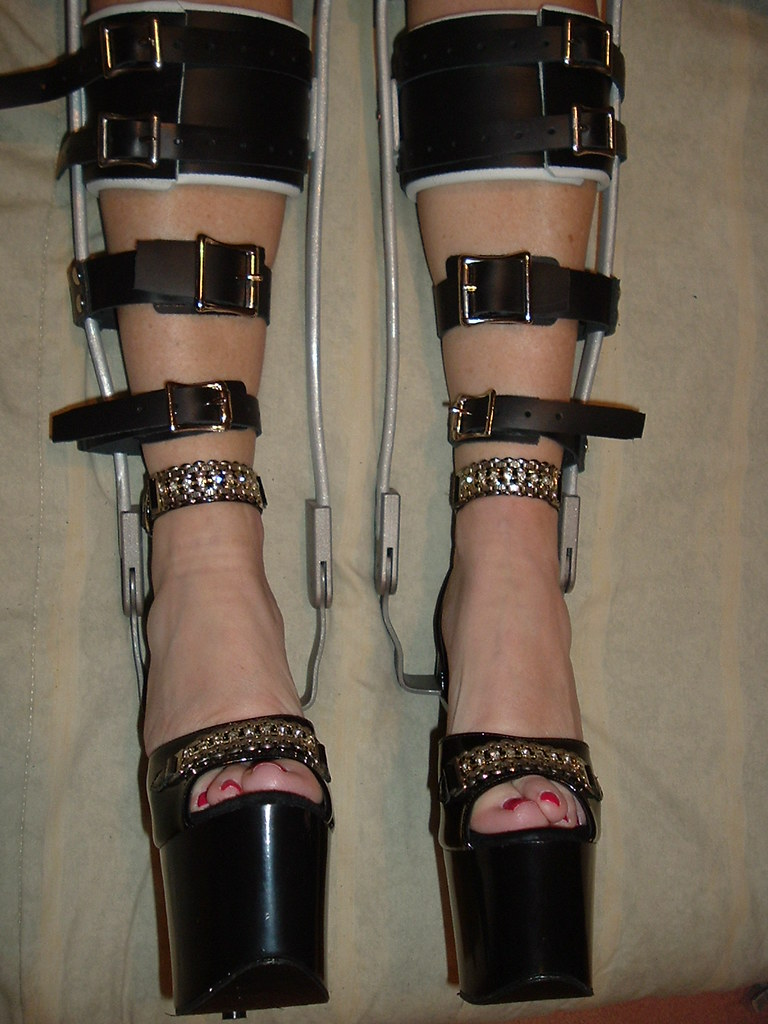 Lower End of Braces Showing High Heeled Sandals   This girl …   Flickr