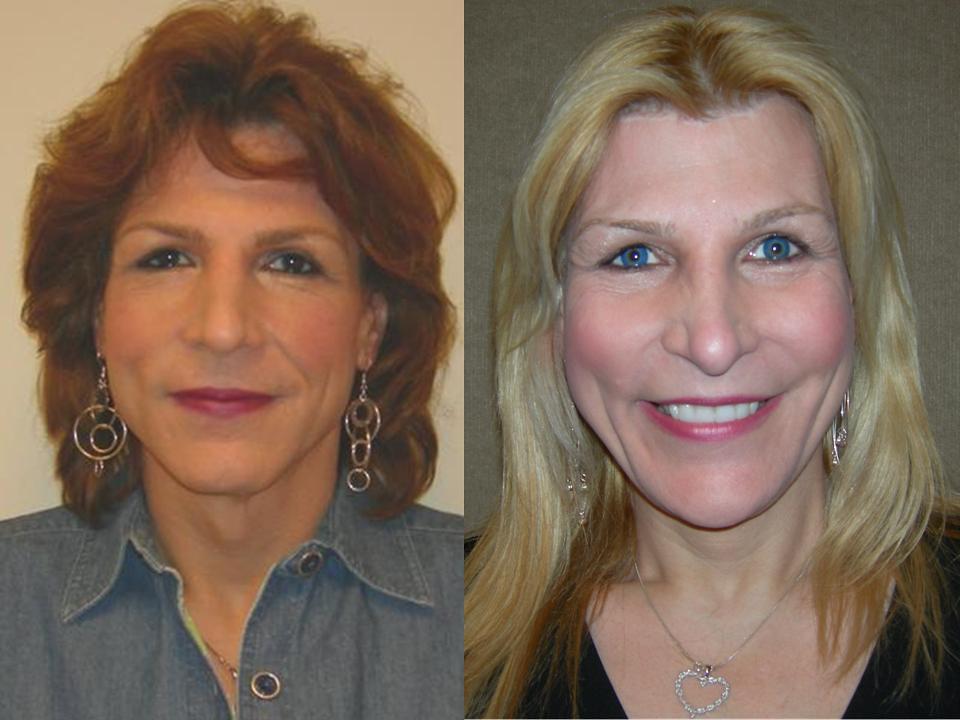 Facial Feminization Procedure | Before and after facial femi
