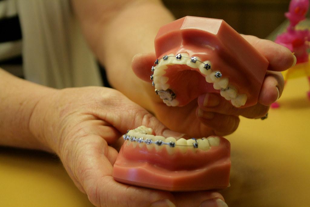 Placing Teeth In Place thru Dental Braces