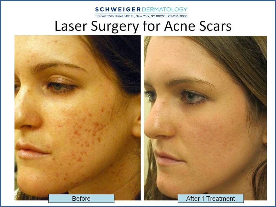 Acne Scarring Laser Treatment Nyc Even A Normal
