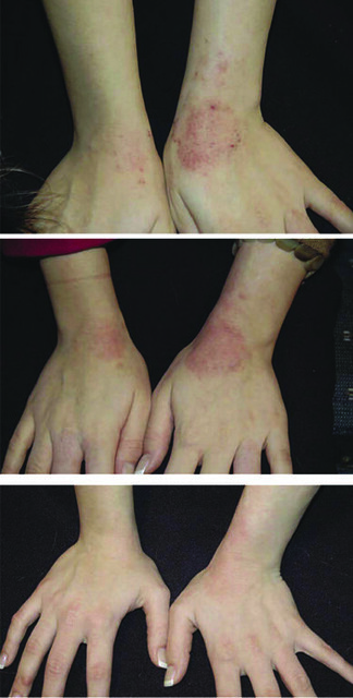 Arbonne Before and After - Eczema | Hands of a 16-year-old a