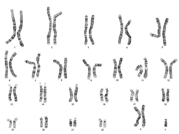 異常 染色体