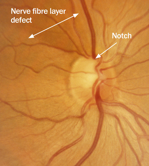 Optic Nerve Cupping: Glaucomatous Optic Neuropathy: Focal Enlargement Of Cup (n