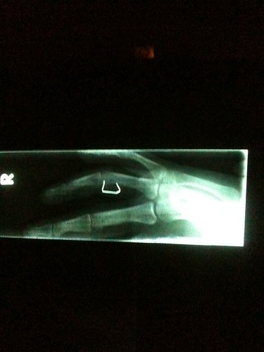 ouch er finger injury xray ow staple