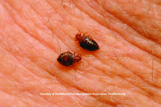 Bed bugs feeding on human skin | by Medill DC