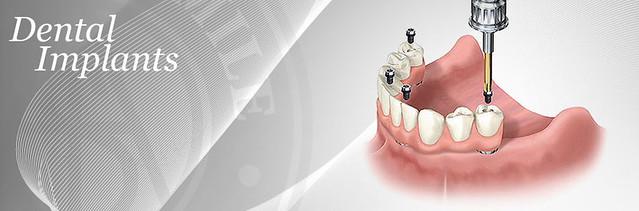 Dental Implants Port St. Lucie, FL | Port St Lucie FL ...