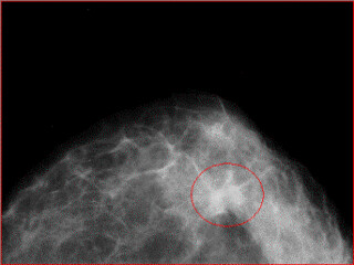 Infiltrating ductal carcinoma
