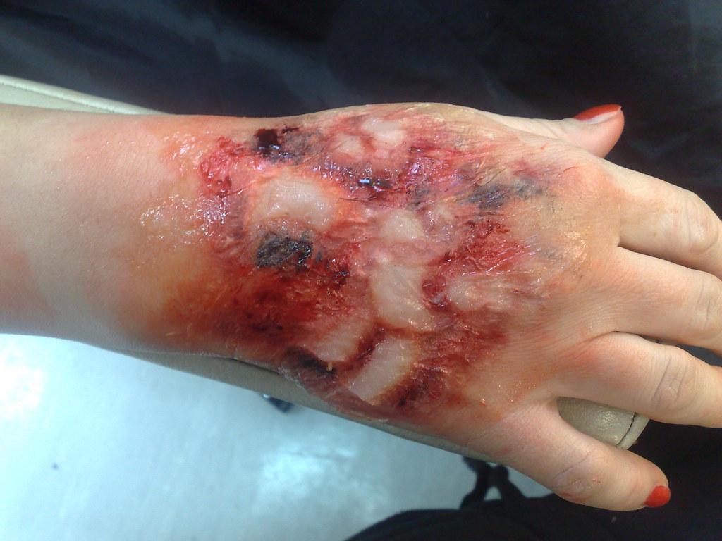 Image result for skin burn