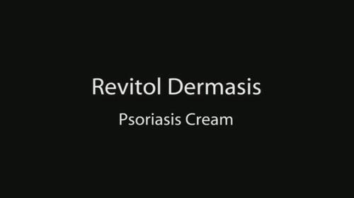 Psoriasis Treatment Revitol Dermasis Psoriasis Cream Revie Flickr