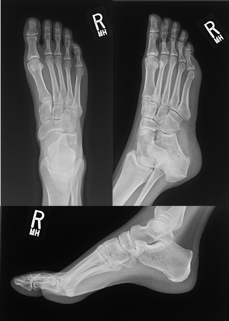 Foot X Ray From Back In August Normal Aluvendale Flickr