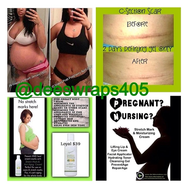 How to lose belly fat after having a baby