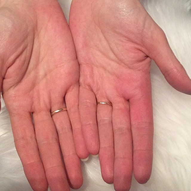 Sewing injury  See how on my right hand where my index fin… | Flickr