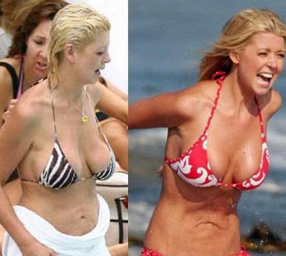 Tara reid breast